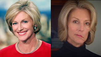 Kathi Goertzen: Before and After Multiple Brain Tumor Surgeries